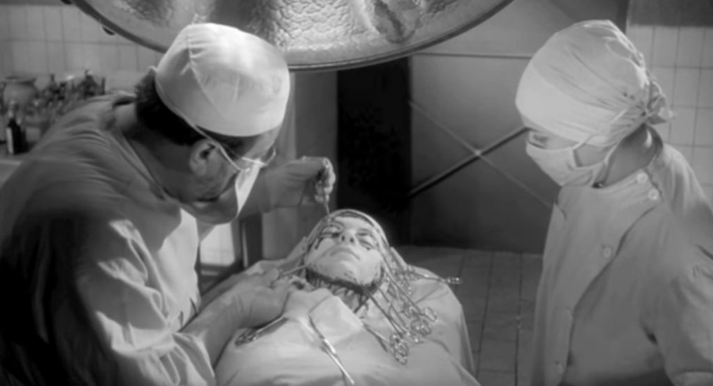 A screenshot taken from the 1960 french horror film 'Eyes Without a Face'.  It shows the most infamous scene in the movie: the facial transplant surgery.   Reviews in Retrospect: Eyes Without a Face (1960).